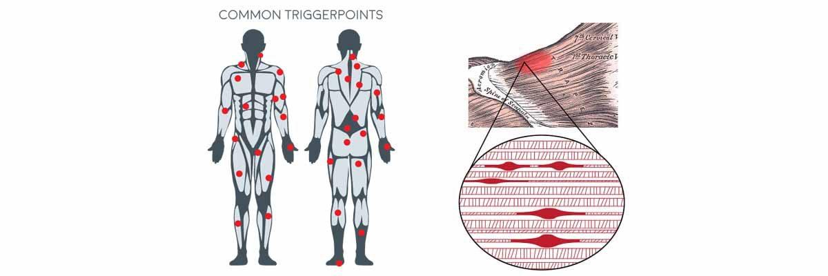 Trigger-points-1200x400.jpg